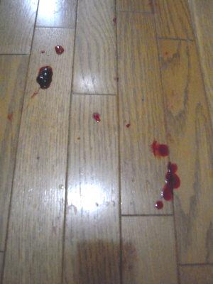 踊り場にも血餅と血痕