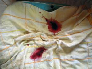 血が付いたベッド