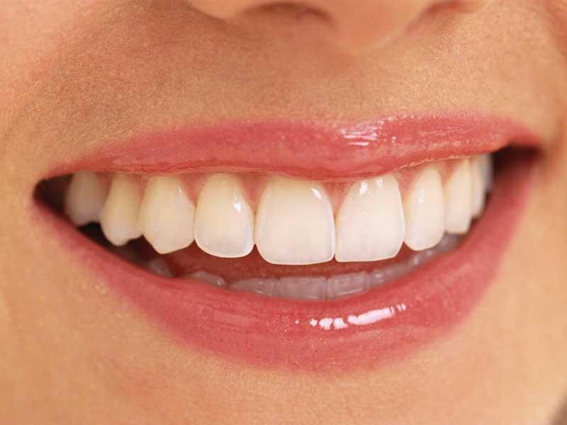 歯並び インプラント