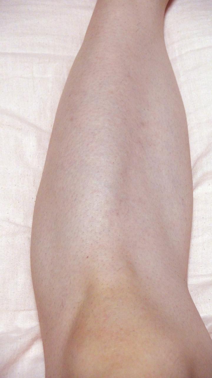 脱毛器ケノンで左足のスネ