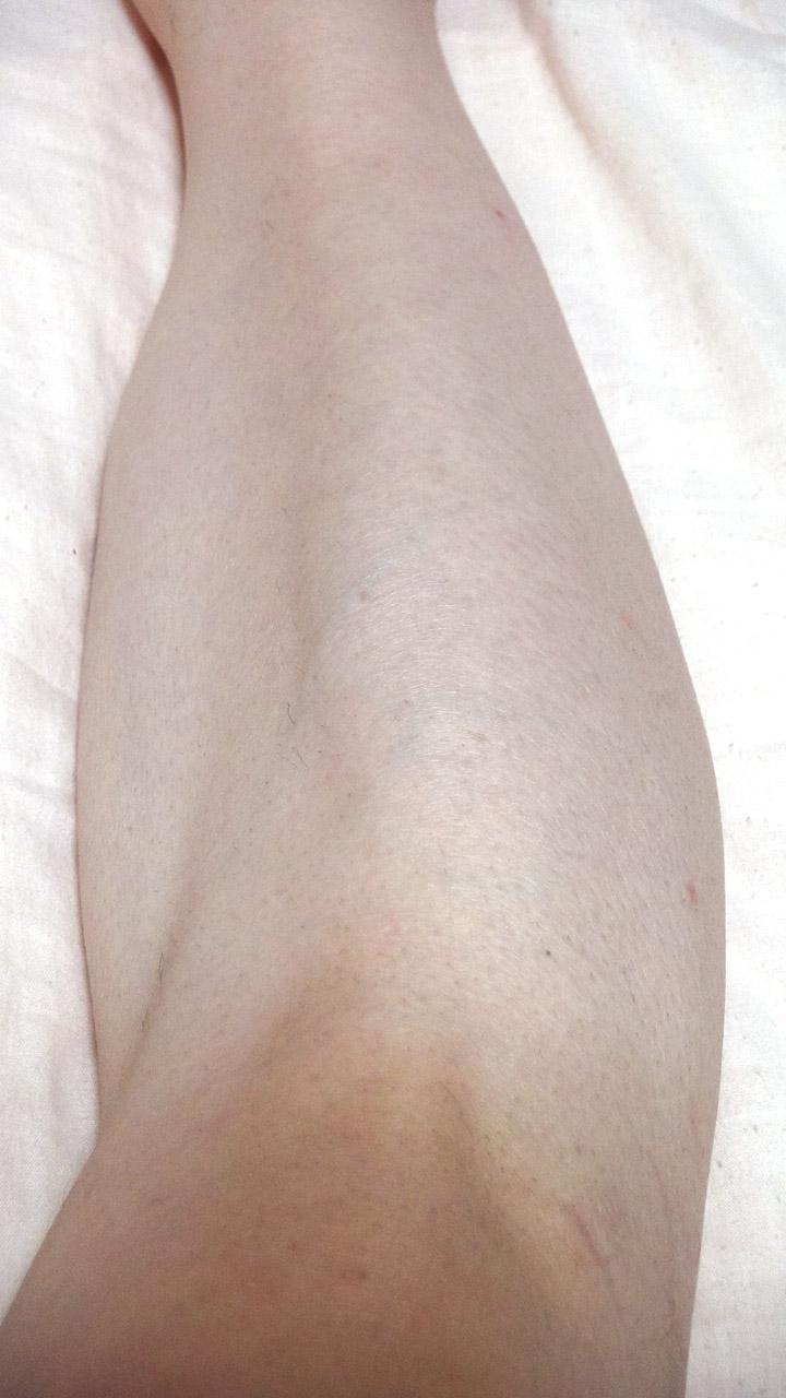 脱毛器ケノンで右足のスネ