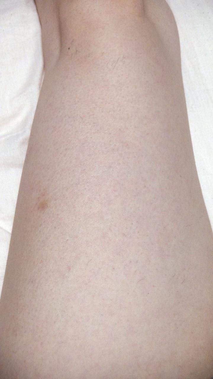 脱毛器ケノンで左足の太もも