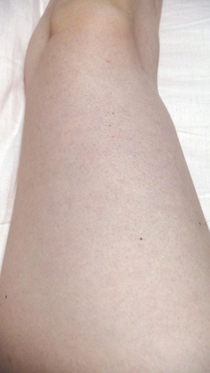 脱毛器ケノンで右足の太もも