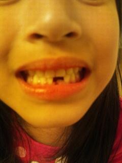 初めて歯が抜けた!
