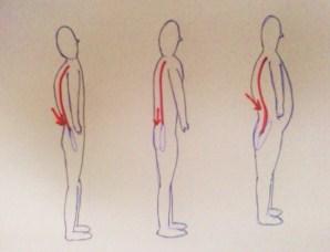 腰痛を起こしやすい体型