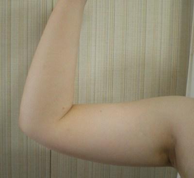 8月9日の二の腕