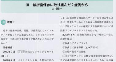 日本歯科評論2013年10月号ケースプレ