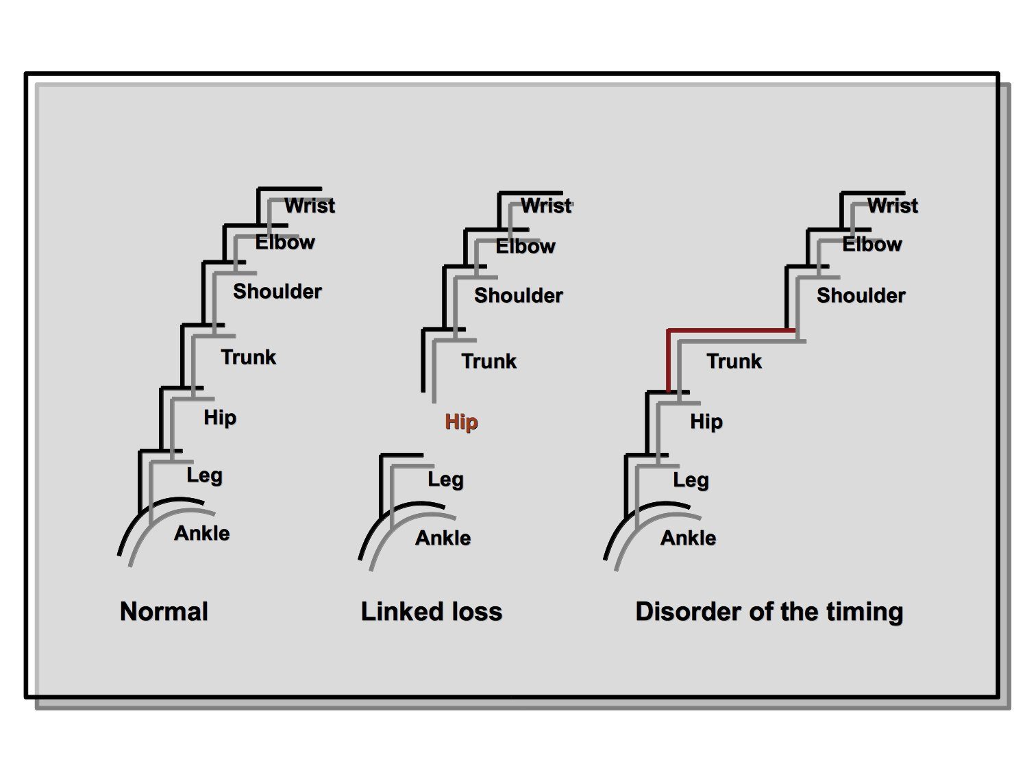 キネティックリンクシステム