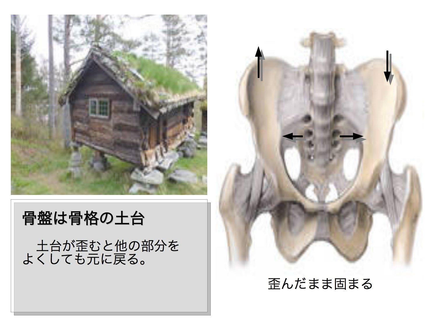 骨盤のアプローチ