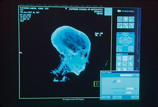 CTスキャンされたツタンカーメンの頭部