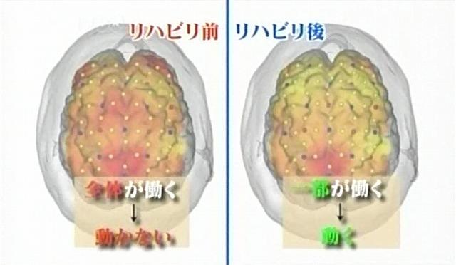 脳が甦る6
