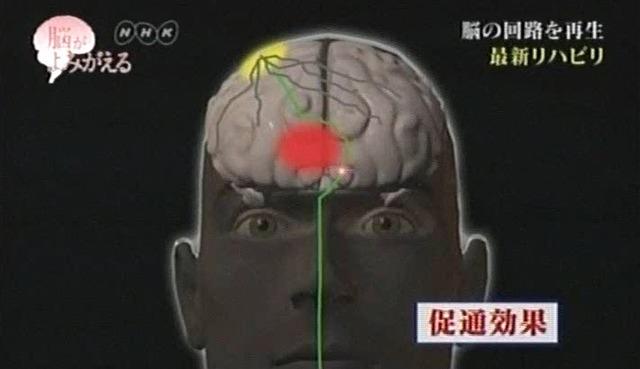 脳が甦る5