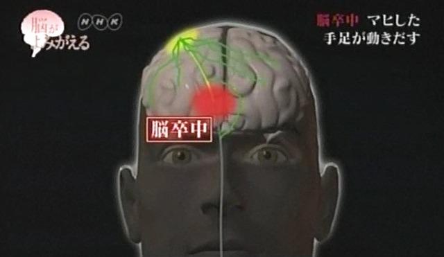 脳が甦る4