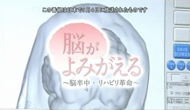 脳が甦る2