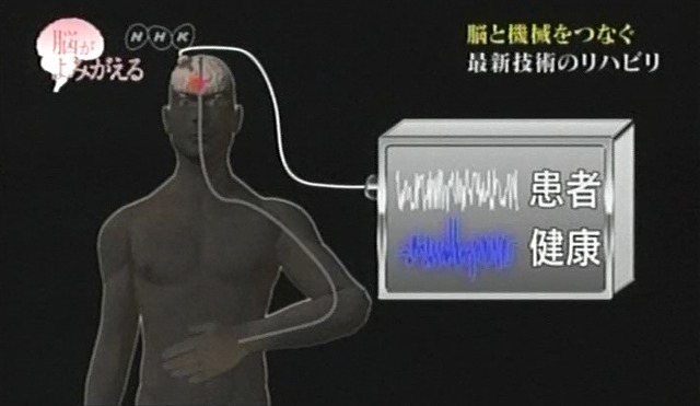 脳が甦る7