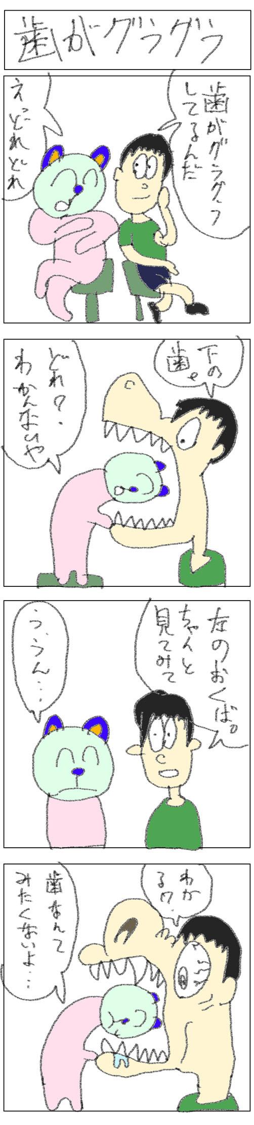 4コマ_歯がグラグラ