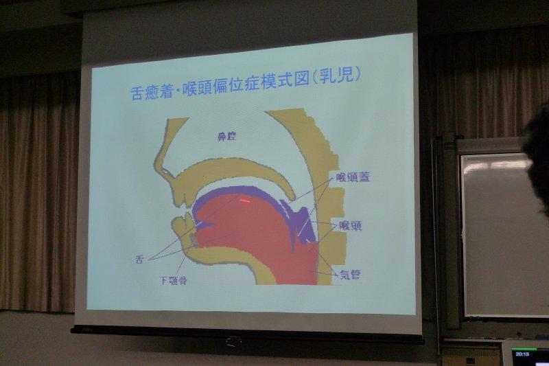 舌癒着症講演会2