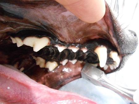 1228歯石除去6